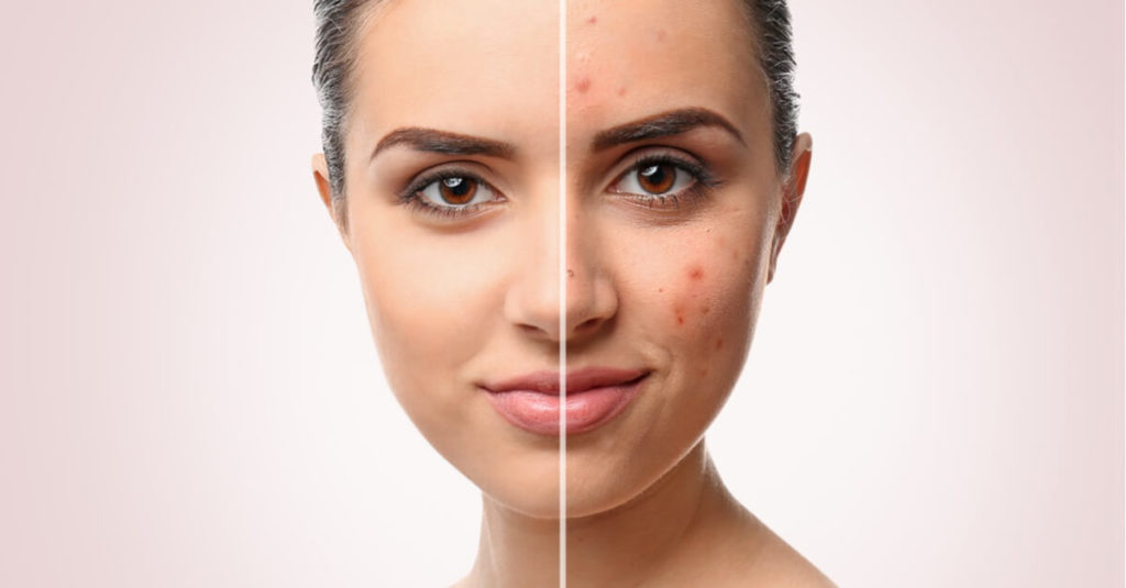 Remove Blemishes