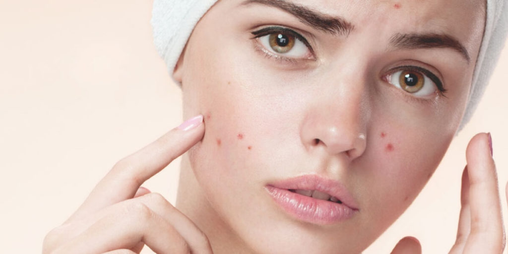 is glycolic acid for acne